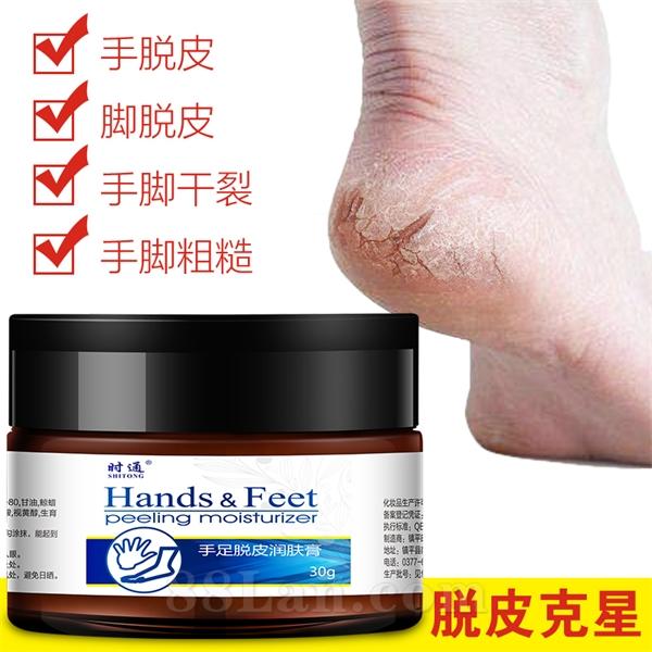 手足脱皮润肤膏